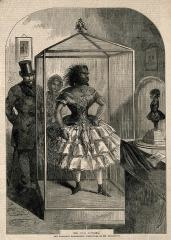 V0007255 Julia Pastrana, a bearded lady, embalmed. Wood engraving, 18Credit: Wellcome Library, London. Wellcome Imagesimages@wellcome.ac.ukhttp://wellcomeimages.orgJulia Pastrana, a bearded lady, embalmed. Wood engraving, 1862.1862 Published: - Copyrighted work available under Creative Commons Attribution only licence CC BY 4.0 http://creativecommons.org/licenses/by/4.0/